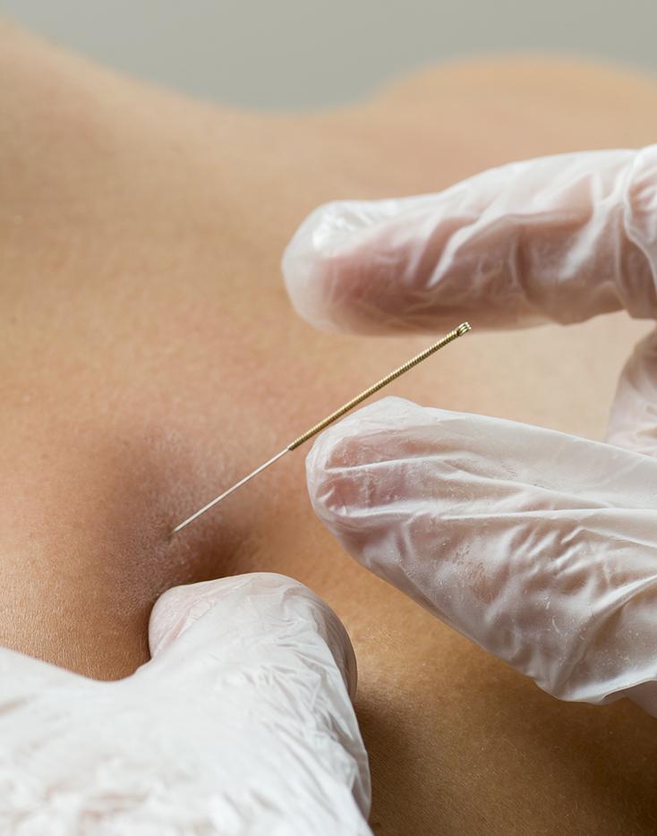 behandeling dry needling